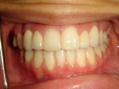 Buena Park Dentist First Choice Dental Dr Kim